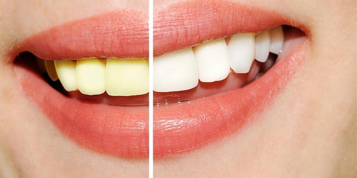 10 Things Men Find Unattractive Yellowish Teeth